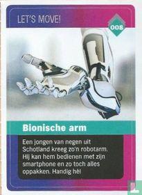 Bionische arm