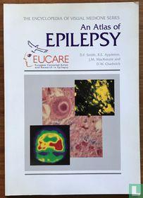 An atlas of Epilepsy