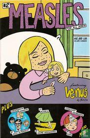 Measles 2
